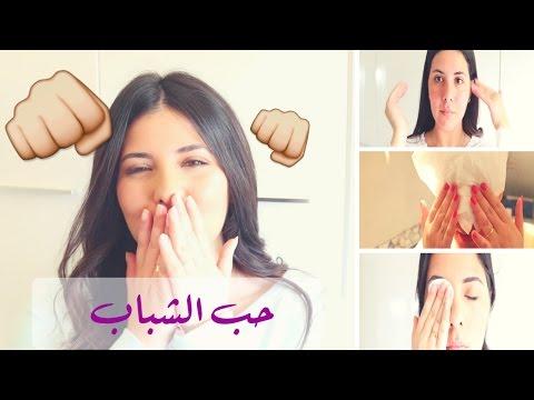 صوت الإمارات - بالفيديو كيفية تفادي حب الشباب وطريقة التخلُّص منه