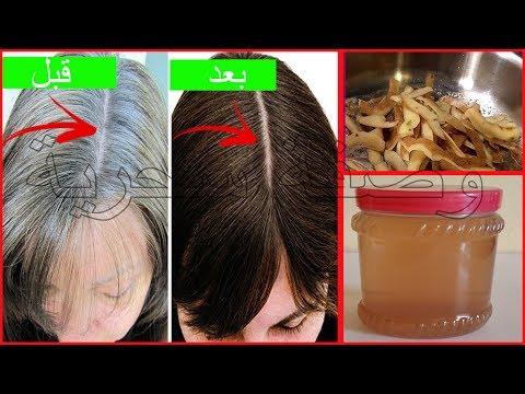 صوت الإمارات - شاهد وصفة السحرية لعلاج الشيب والتخلص من الشعر الأبيض نهائيًا