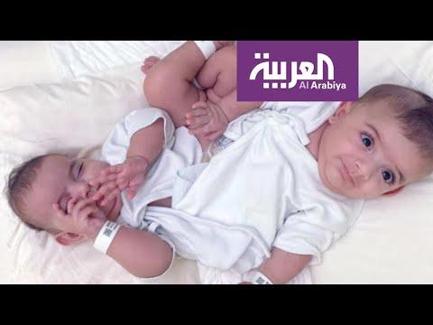 شاهد كيف أصبح التوأم السيامي الليبي بعد 20 يوما من عملية الفصل