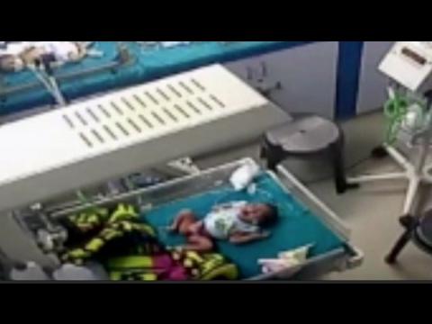 صوت الإمارات - ممرض عديم الرحمة ينزع ساق طفل في مستشفى هندي