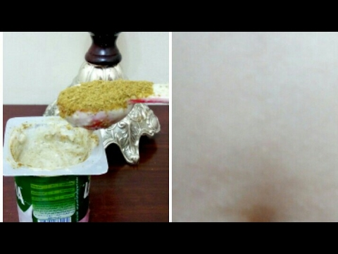 صوت الإمارات - شاهد  ملعقة كبيرة تخلص من الكرش بدون تأثير على المعدة