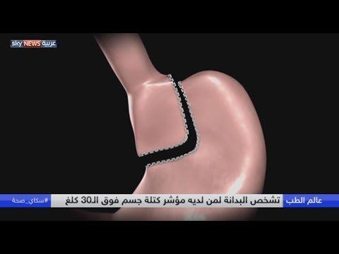 صوت الإمارات - شاهد البدانة مرتبطة بالسكري والقلب والسرطان