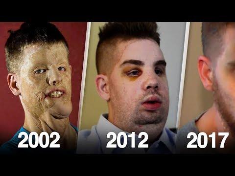 صوت الإمارات - بالفيديو شاب سخر منه أقرانه بسبب شكله ليفاجئهم بعد 5 سنوات