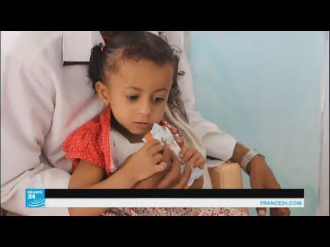 صوت الإمارات - شاهد المدنيون في صنعاء يدفعون ثمن المعارك المستمرة