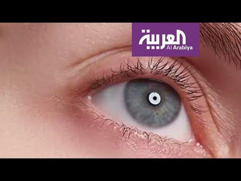 صوت الإمارات - شاهد سبب ظهور الهالات السوداء تحت العينين