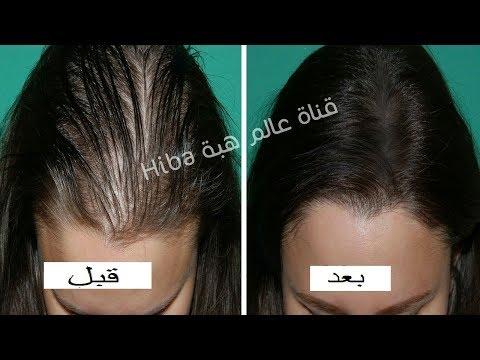 صوت الإمارات - تعرّف على أقوى وصفة لمنع تساقط الشعر