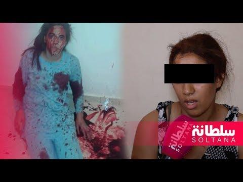 صوت الإمارات - شاهد قاصر مغربية تروي تفاصيل طعنها بسبب رفضها الزواج