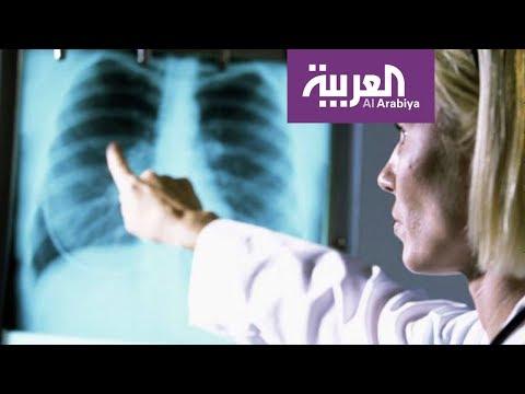 صوت الإمارات - شاهد السيجارة الالكترونية لا تسبب تجمّع الماء في الرئة