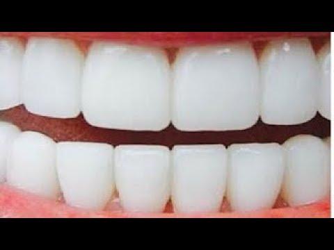 صوت الإمارات - تبييض الأسنان في دقيقتين وإزالة الاصفرار بمكونين فقط