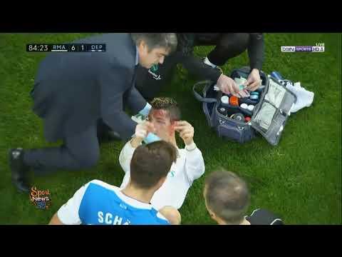 إصابة كريستيانو رونالدو في المباراة أمام لاكورونيا
