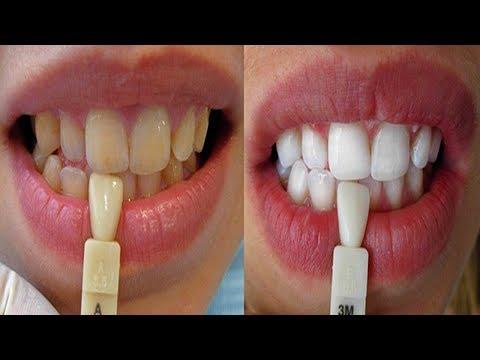 شاهد طريقة لتبييض الأسنان بسهولة