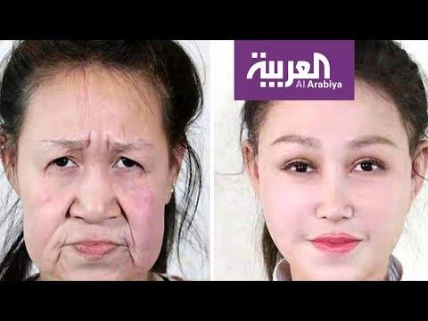 شاهد فتاة تحصل على وجه جديد بعد سنوات من التنمر