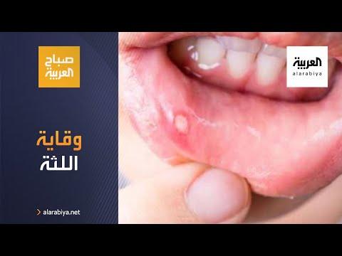 شاهد كيف يمكن تفادي أمراض اللثة والقول أنها تعاني من الأمراض