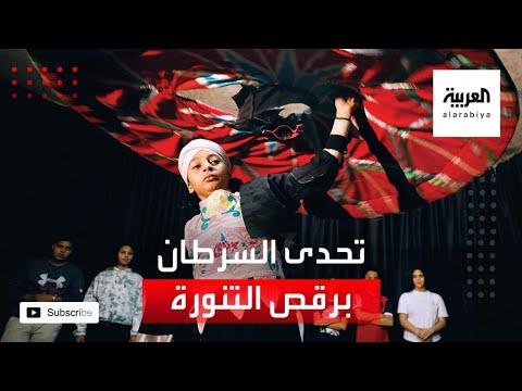 طفل مصري تحدى السرطان برقص التنورة