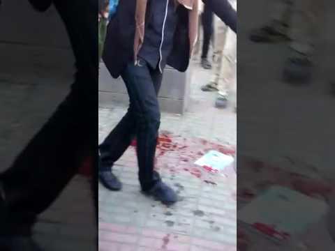 صوت الإمارات - شاهد  مقتل طالبين في مدرسة في اليمن